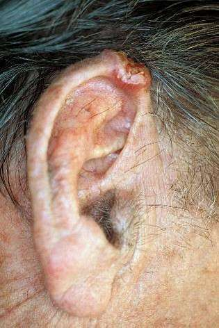Squamous Cell cancer of the ear (SCC)