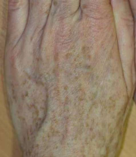 Correction of age spots on backs of hands