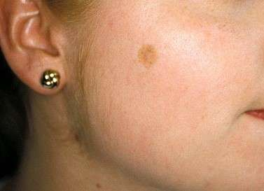 Pigment spot before treatment