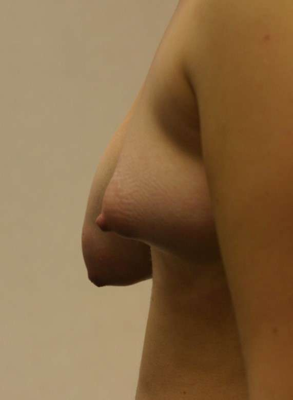 Breast asymm1.jpg