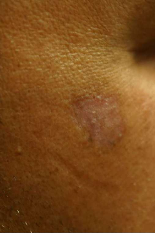 Pigmented mole after successful laser treatment