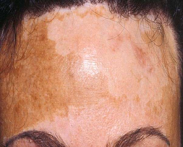 Successful treatment of areas of pigmentation