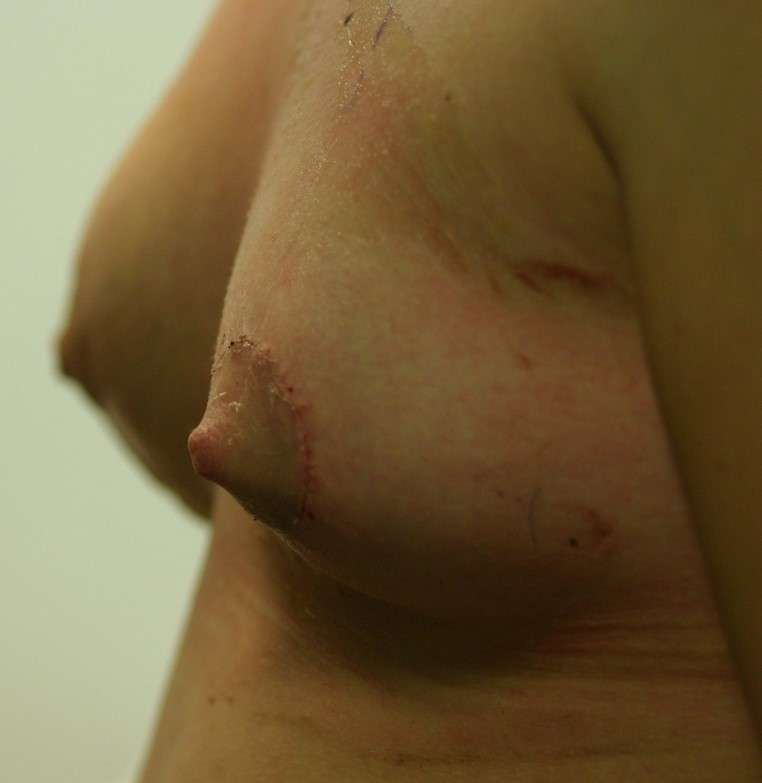 Droopy breast correction