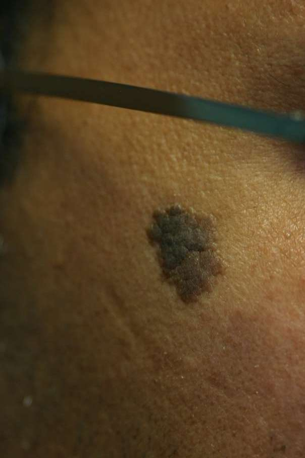 Dark pigmented mole before treatment