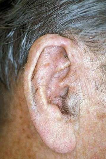 Successful ear cancer removal and reconstruction