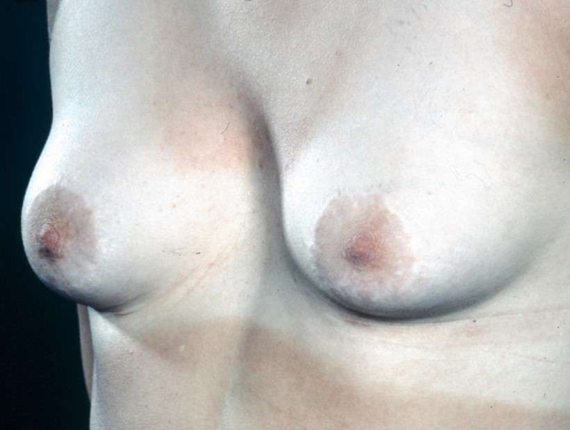 Breast enlargement for deformed breasts